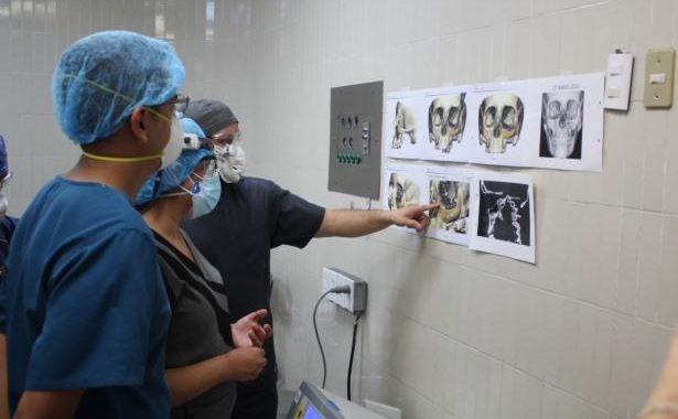 Con tecnología tridimensional, médicos de La Raza logran reconstrucción maxilofacial a paciente.